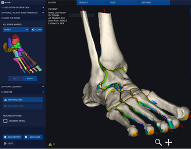 3D model of a whole foot from a WBCT scan, showing joint space mapping