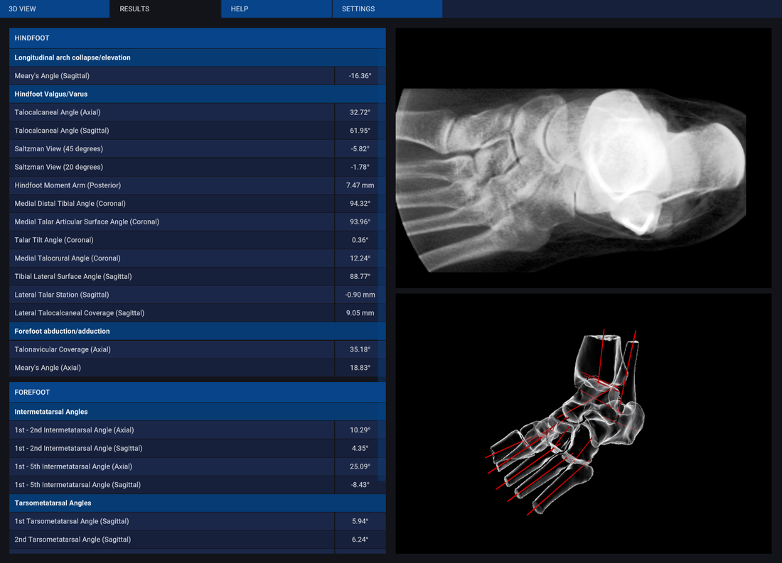 Automated 3D analytics of the foot with digitally reconstructed radiograph
